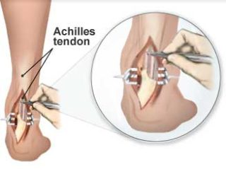 Achilles Surgery | Foot Surgery – Foot Pain Management